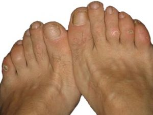 A patient with corns on their toes