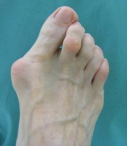 A patient with bunions on their feet