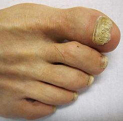 A patient with a fungal nail problem on their toes