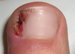 An ingrowing toe nail