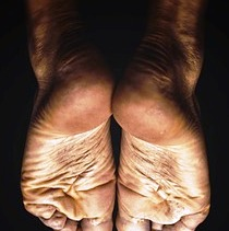 A podiatry patient with cracked heels