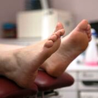 A patient's feet lying on a podiatry treatment couch